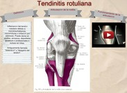 Tendinitis rotuliana's thumbnail