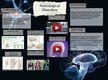 Neurological Disorder thumbnail